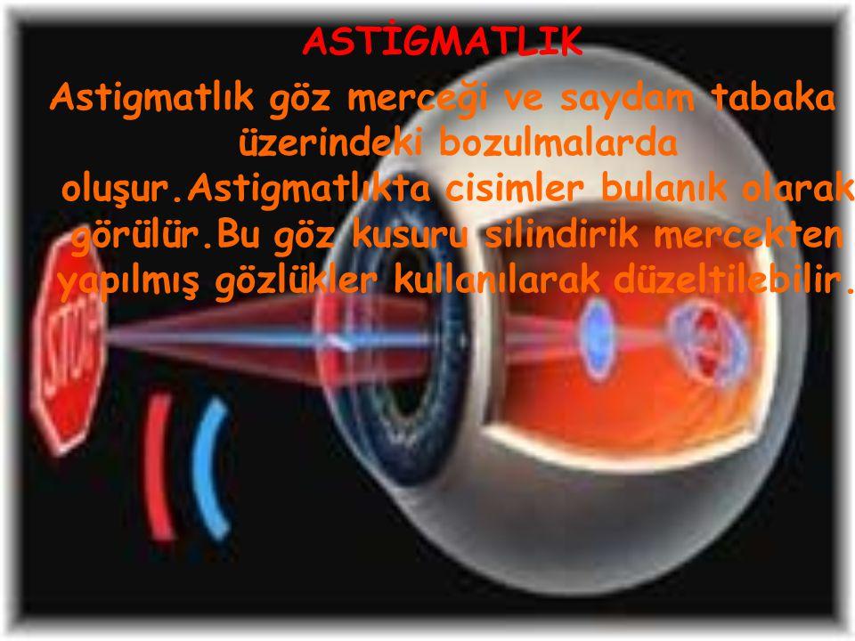 ASTİGMATLIK Astigmatlık göz merceği ve saydam tabaka üzerindeki bozulmalarda oluşur.Astigmatlıkta cisimler bulanık olarak görülür.Bu göz kusuru silind