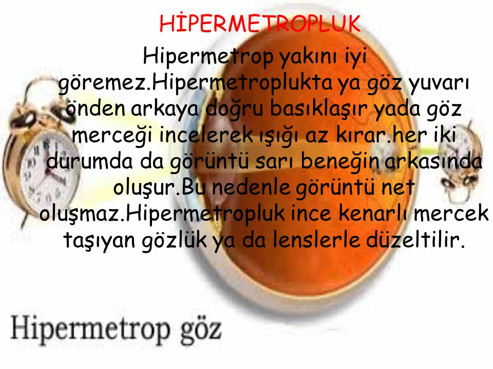 HİPERMETROPLUK Hipermetrop yakını iyi göremez.Hipermetroplukta ya göz yuvarı önden arkaya doğru basıklaşır yada göz merceği incelerek ışığı az kırar.h