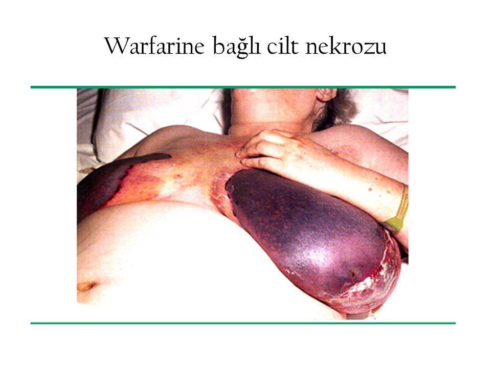 Warfarine ba ğ lı cilt nekrozu