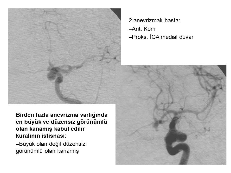 kuralının istisnası: –Büyük olan değil düzensiz görünümlü olan kanamış 2 anevrizmalı hasta: –Ant. Kom –Proks. İCA medial duvar