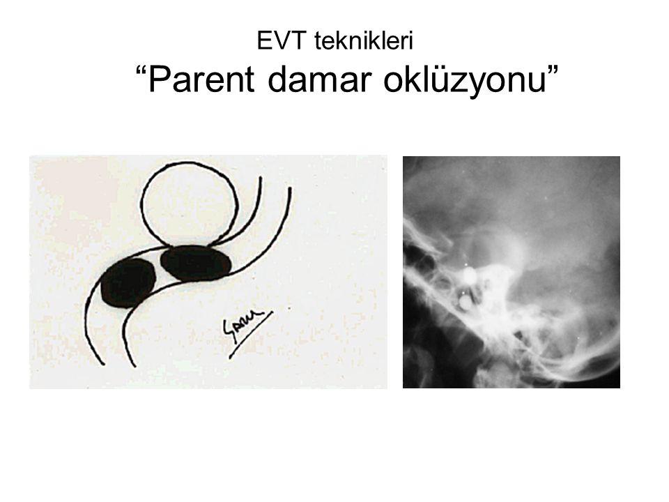"""EVT teknikleri """"Parent damar oklüzyonu"""""""