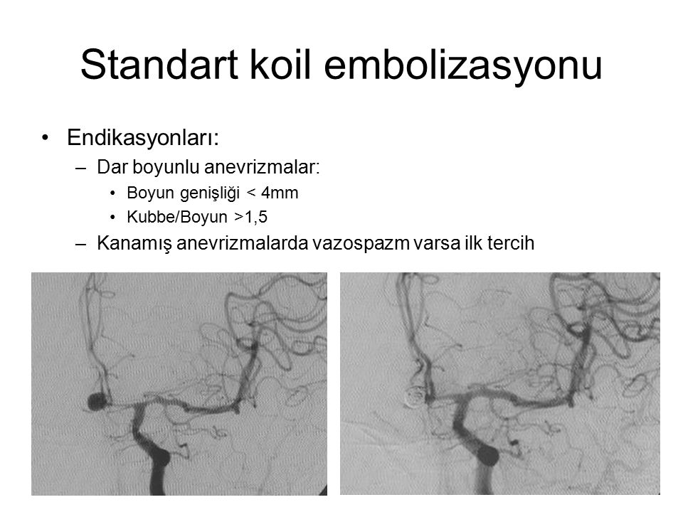 Standart koil embolizasyonu Endikasyonları: –Dar boyunlu anevrizmalar: Boyun genişliği < 4mm Kubbe/Boyun >1,5 –Kanamış anevrizmalarda vazospazm varsa