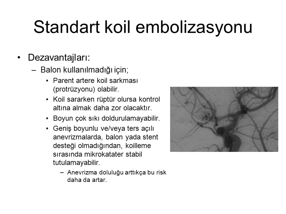 Standart koil embolizasyonu Dezavantajları: –Balon kullanılmadığı için; Parent artere koil sarkması (protrüzyonu) olabilir. Koil sararken rüptür olurs