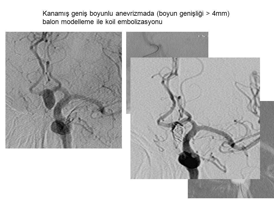 Kanamış geniş boyunlu anevrizmada (boyun genişliği > 4mm) balon modelleme ile koil embolizasyonu