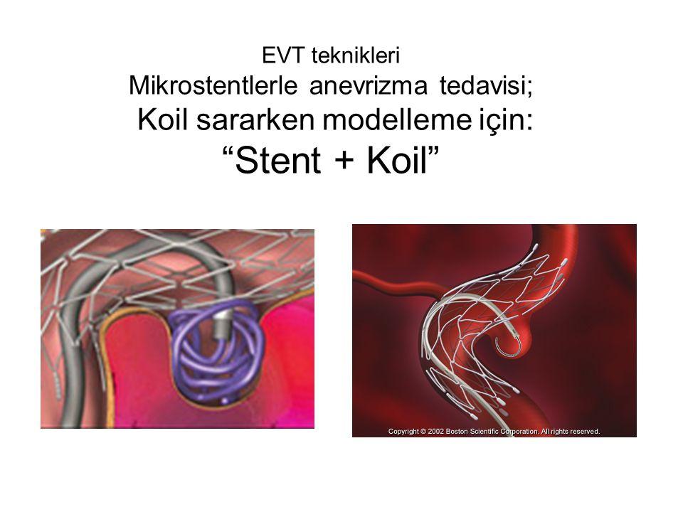 "EVT teknikleri Mikrostentlerle anevrizma tedavisi; Koil sararken modelleme için: ""Stent + Koil"""