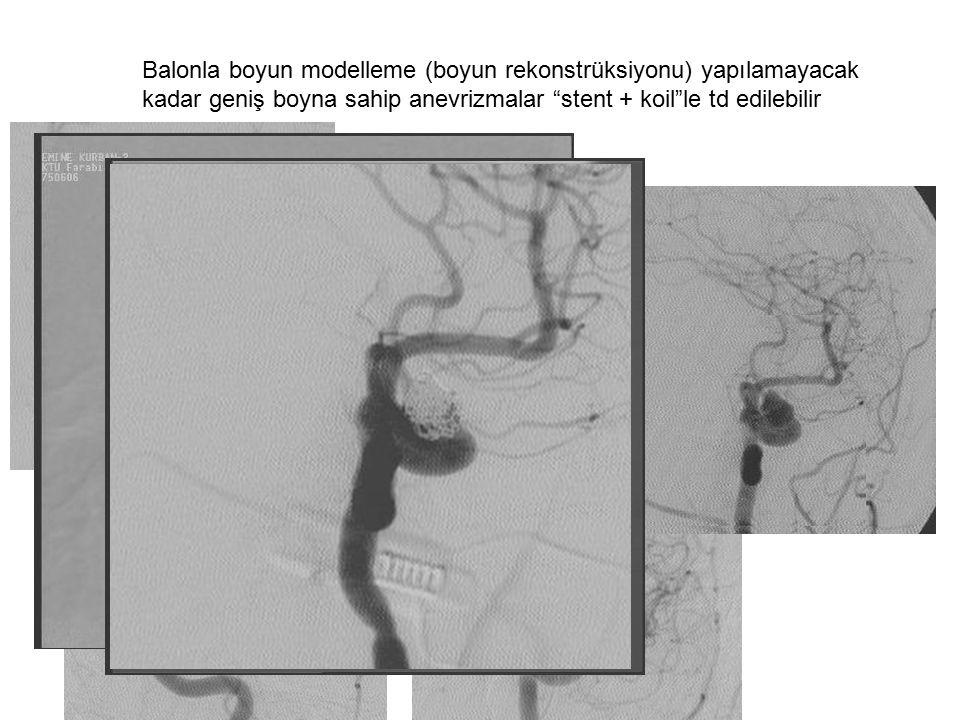 """Balonla boyun modelleme (boyun rekonstrüksiyonu) yapılamayacak kadar geniş boyna sahip anevrizmalar """"stent + koil""""le td edilebilir"""