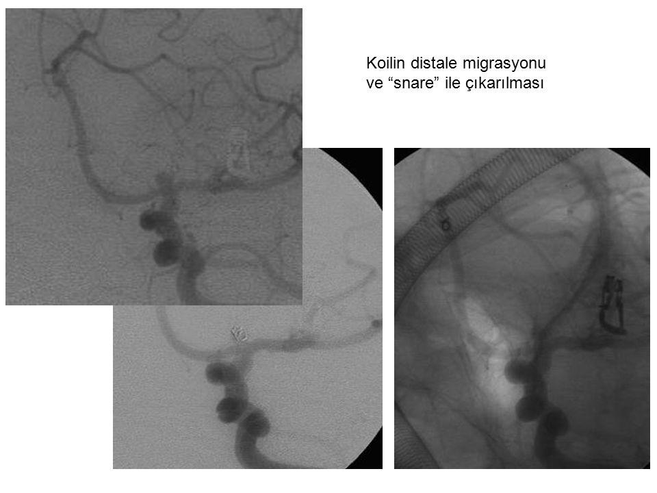 """Koilin distale migrasyonu ve """"snare"""" ile çıkarılması"""