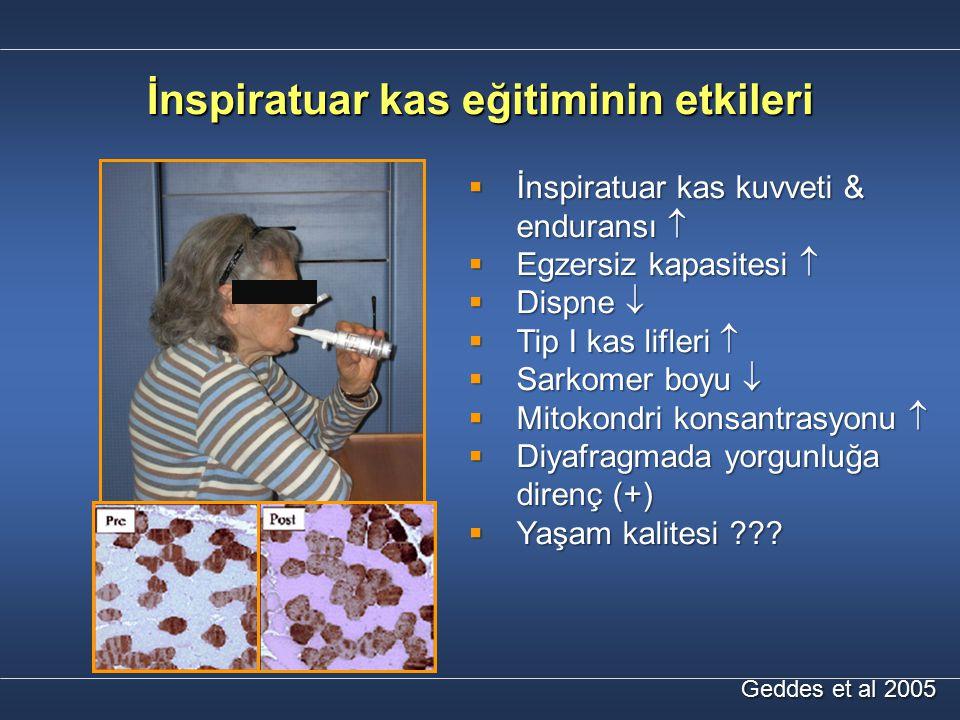 İnspiratuar kas eğitiminin etkileri Geddes et al 2005  İnspiratuar kas kuvveti & enduransı   Egzersiz kapasitesi   Dispne   Tip I kas lifleri 
