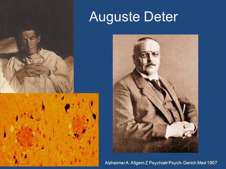Auguste Deter Alzheimer A. Allgem Z Psychiatr Psych- Gerich Med 1907
