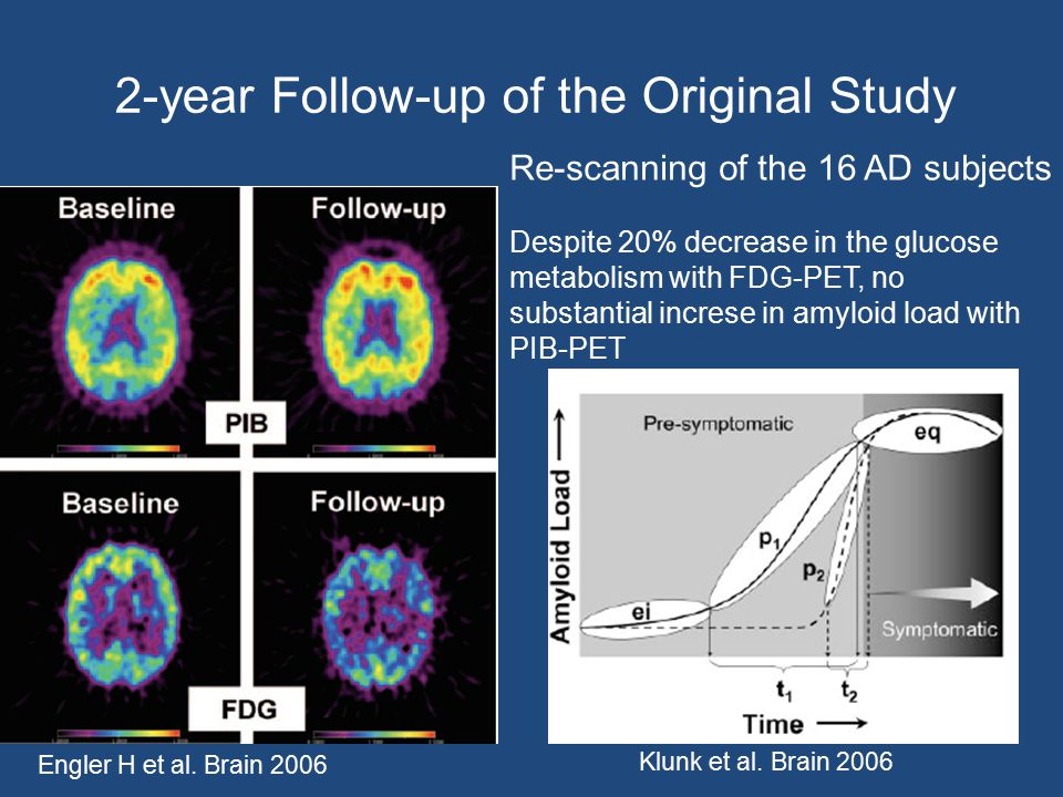 2-year Follow-up of the Original Study Engler H et al. Brain 2006 Re-scanning of the 16 AD subjects Despite 20% decrease in the glucose metabolism wit