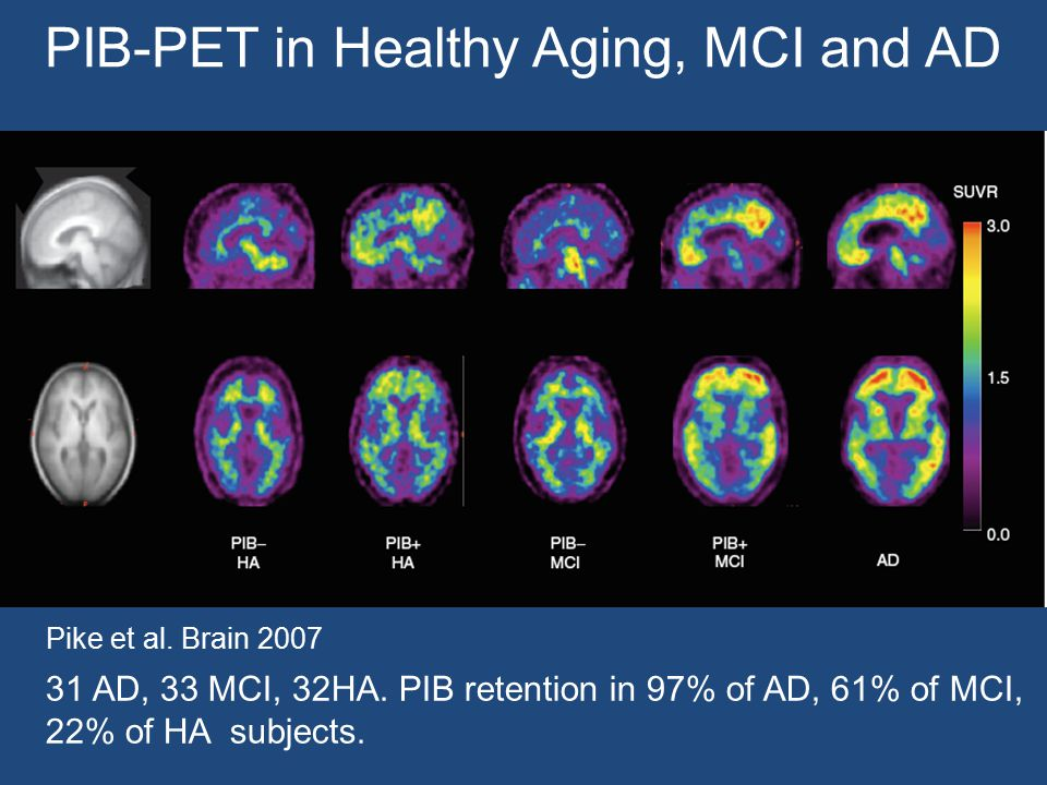PIB-PET in Healthy Aging, MCI and AD 31 AD, 33 MCI, 32HA. PIB retention in 97% of AD, 61% of MCI, 22% of HA subjects. Pike et al. Brain 2007