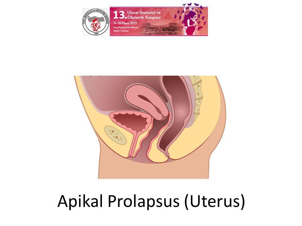 Apikal Prolapsus (Uterus)
