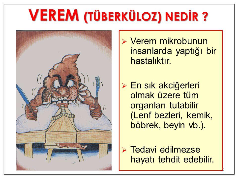 5  Verem mikrobunun insanlarda yaptığı bir hastalıktır.  En sık akciğerleri olmak üzere tüm organları tutabilir (Lenf bezleri, kemik, böbrek, beyin