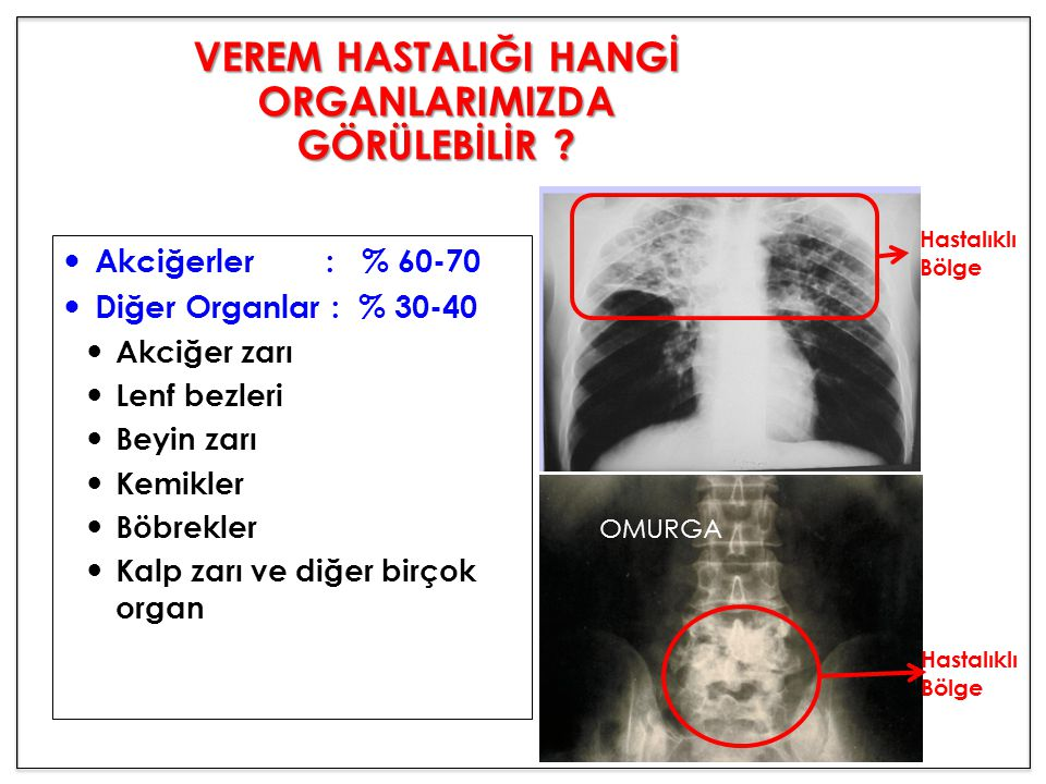 Akciğerler : % 60-70 Diğer Organlar : % 30-40 Akciğer zarı Lenf bezleri Beyin zarı Kemikler Böbrekler Kalp zarı ve diğer birçok organ OMURGA VEREM HAS