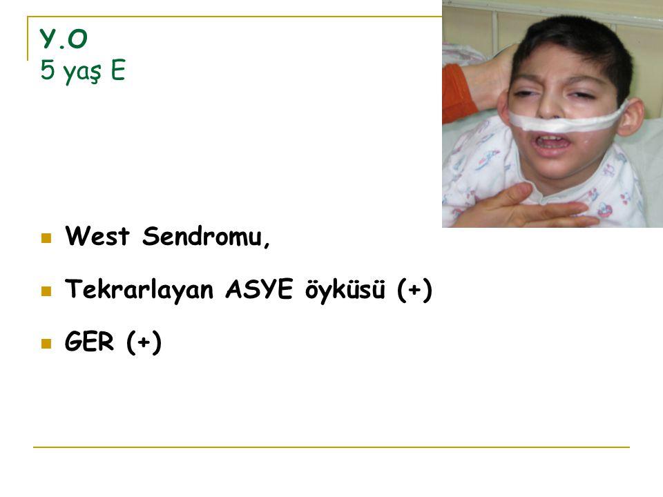 Y.O 5 yaş E West Sendromu, Tekrarlayan ASYE öyküsü (+) GER (+)