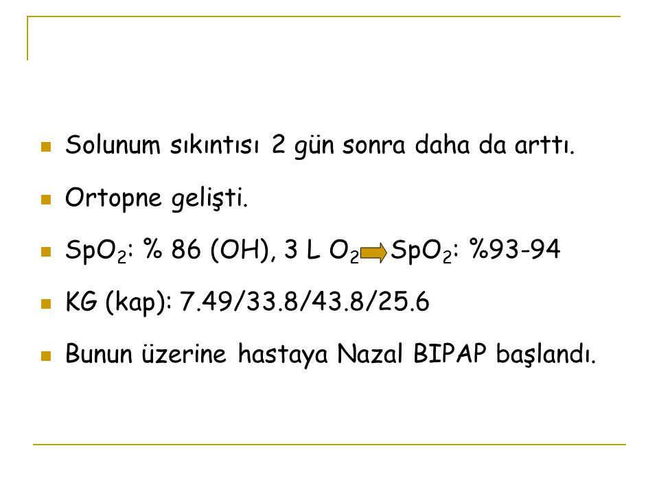 Solunum sıkıntısı 2 gün sonra daha da arttı. Ortopne gelişti. SpO 2 : % 86 (OH), 3 L O 2 SpO 2 : %93-94 KG (kap): 7.49/33.8/43.8/25.6 Bunun üzerine ha
