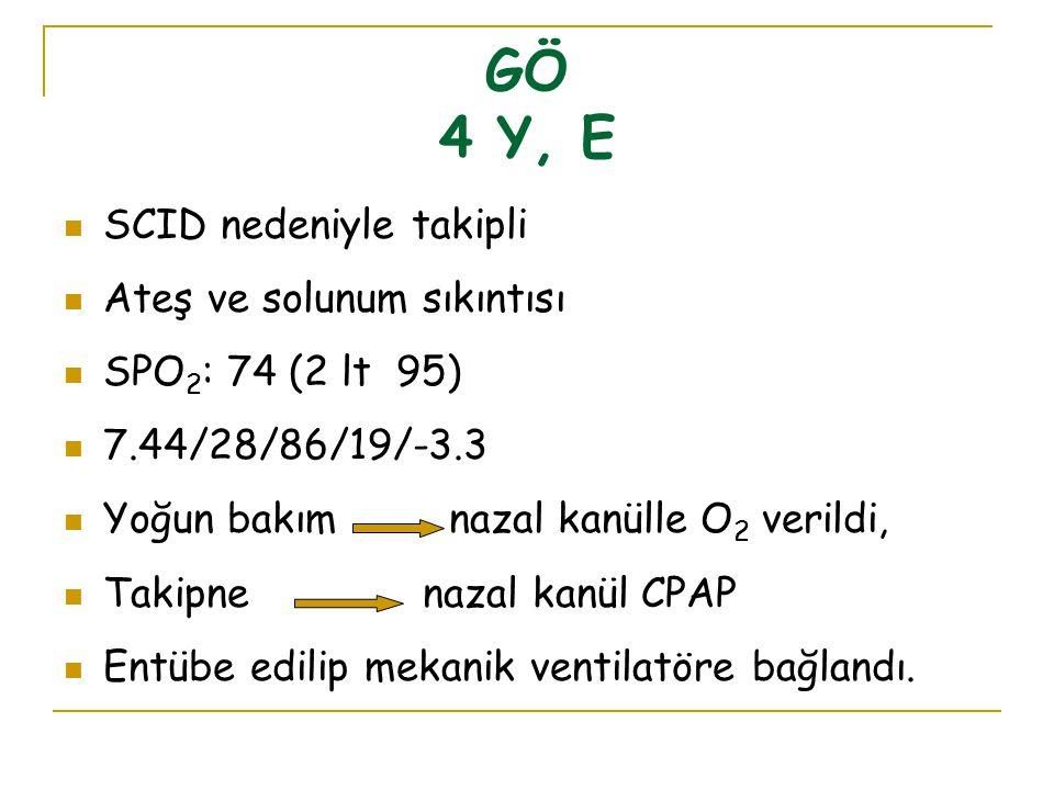 GÖ 4 Y, E SCID nedeniyle takipli Ateş ve solunum sıkıntısı SPO 2 : 74 (2 lt 95) 7.44/28/86/19/-3.3 Yoğun bakım nazal kanülle O 2 verildi, Takipne naza