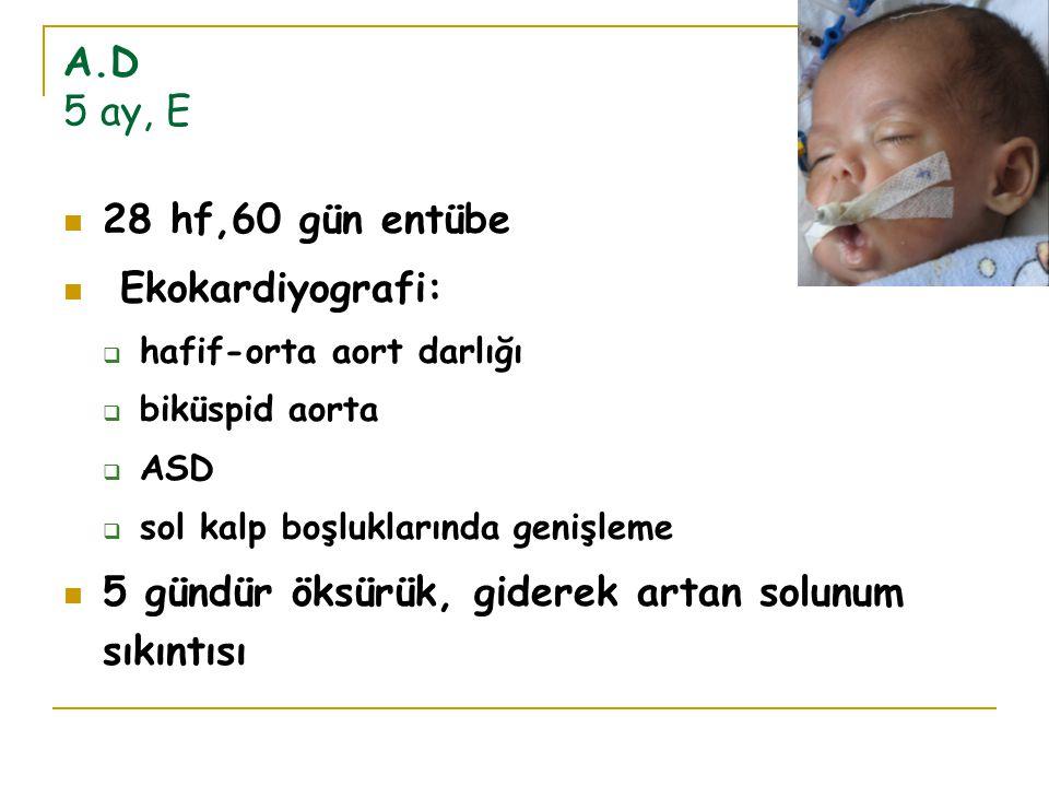 A.D 5 ay, E 28 hf,60 gün entübe Ekokardiyografi:  hafif-orta aort darlığı  biküspid aorta  ASD  sol kalp boşluklarında genişleme 5 gündür öksürük,