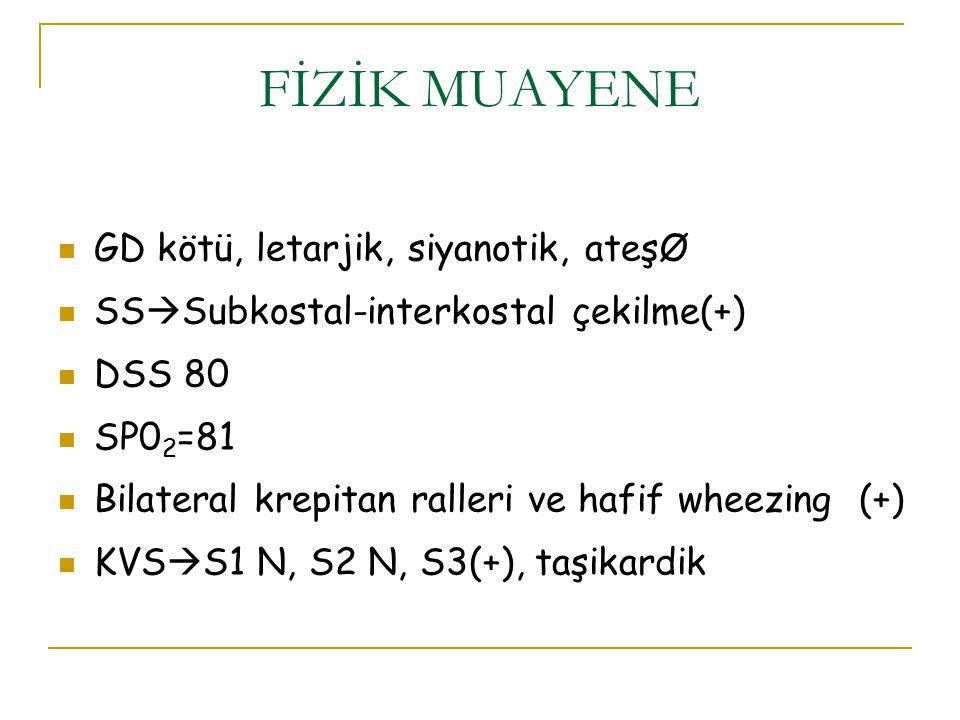 GD kötü, letarjik, siyanotik, ateşØ SS  Subkostal-interkostal çekilme(+) DSS 80 SP0 2 =81 Bilateral krepitan ralleri ve hafif wheezing (+) KVS  S1 N