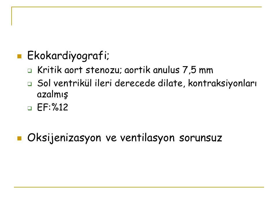 Ekokardiyografi;  Kritik aort stenozu; aortik anulus 7,5 mm  Sol ventrikül ileri derecede dilate, kontraksiyonları azalmış  EF:%12 Oksijenizasyon v