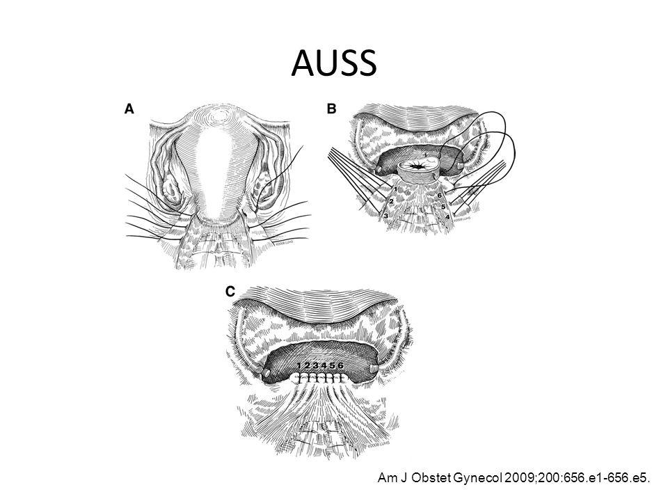 AUSS Am J Obstet Gynecol 2009;200:656.e1-656.e5.
