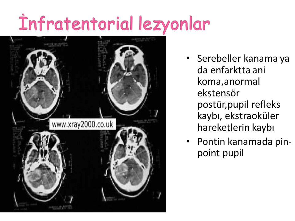 İlerleyen hemiparezi Asimetrik kas tonus ve refleksler Gözler lezyon tarafına deviye olur Lezyon etrafında ödem arttıkça bulgular ilerleyip asimetrik olabilir