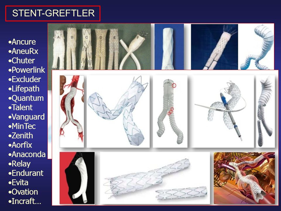 Ancure AneuRx Chuter Powerlink Excluder Lifepath Quantum Talent Vanguard MinTec Zenith Aorfix Anaconda Relay Endurant Evita Ovation Incraft… STENT-GRE