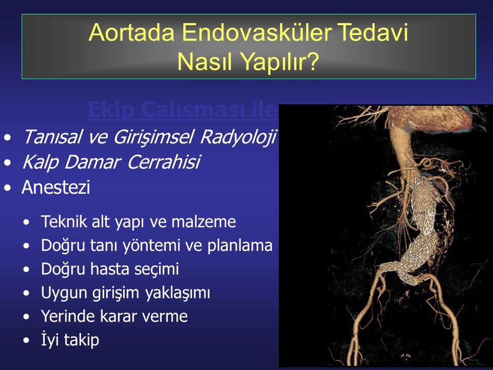 Aortada Endovasküler Tedavi Nasıl Yapılır.
