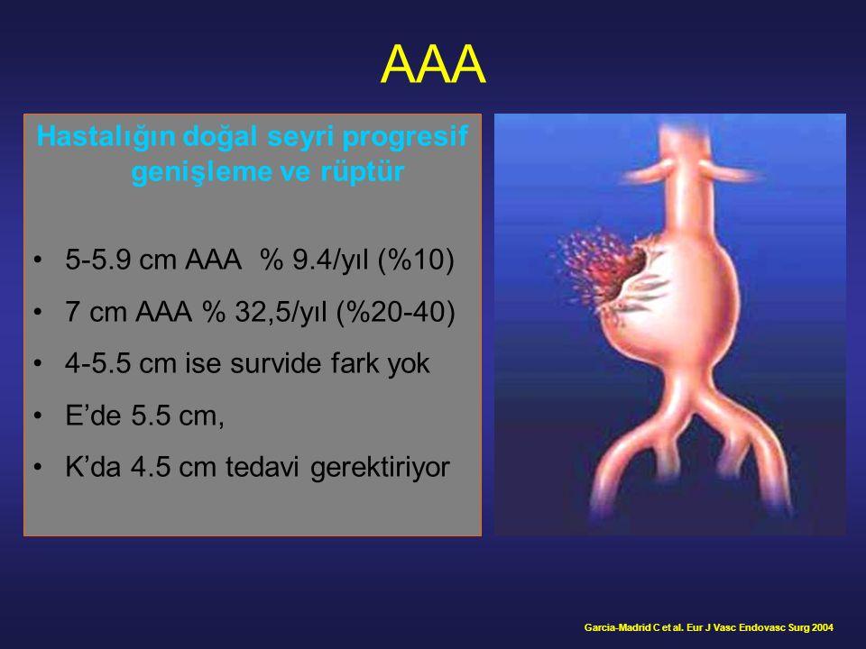 EVAR'da distal yetersiz yerleşim ve tip IB endoleak