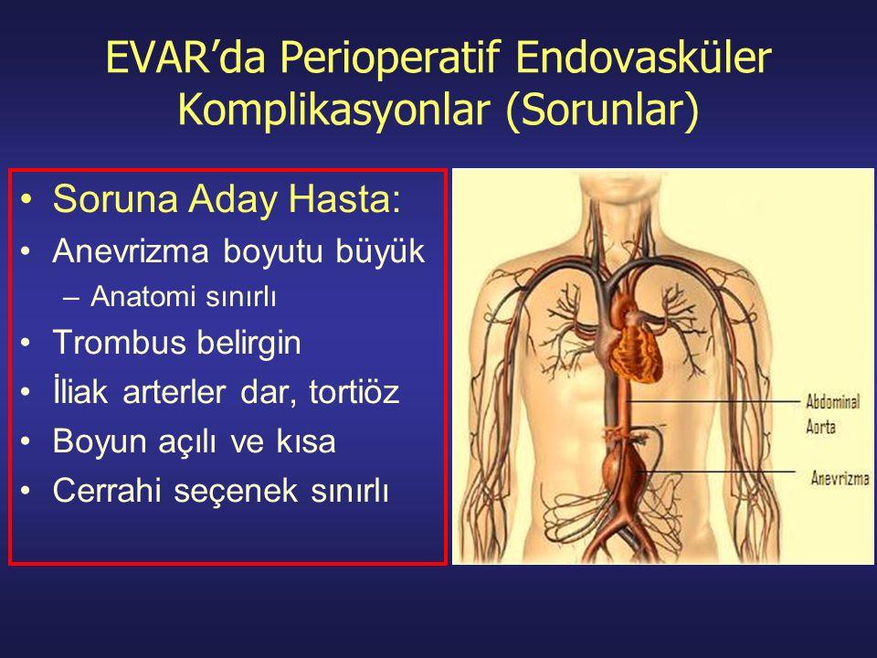 EVAR'da Perioperatif Endovasküler Komplikasyonlar (Sorunlar) Soruna Aday Hasta: Anevrizma boyutu büyük –Anatomi sınırlı Trombus belirgin İliak arterler dar, tortiöz Boyun açılı ve kısa Cerrahi seçenek sınırlı
