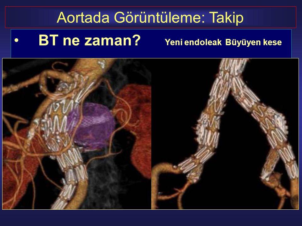 BT ne zaman? Yeni endoleakBüyüyen kese Aortada Görüntüleme: Takip