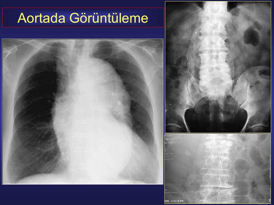 Aortik Stent-Greft Uygulamaları 1.Klinik muayene / Radyolojik temel inceleme 2.