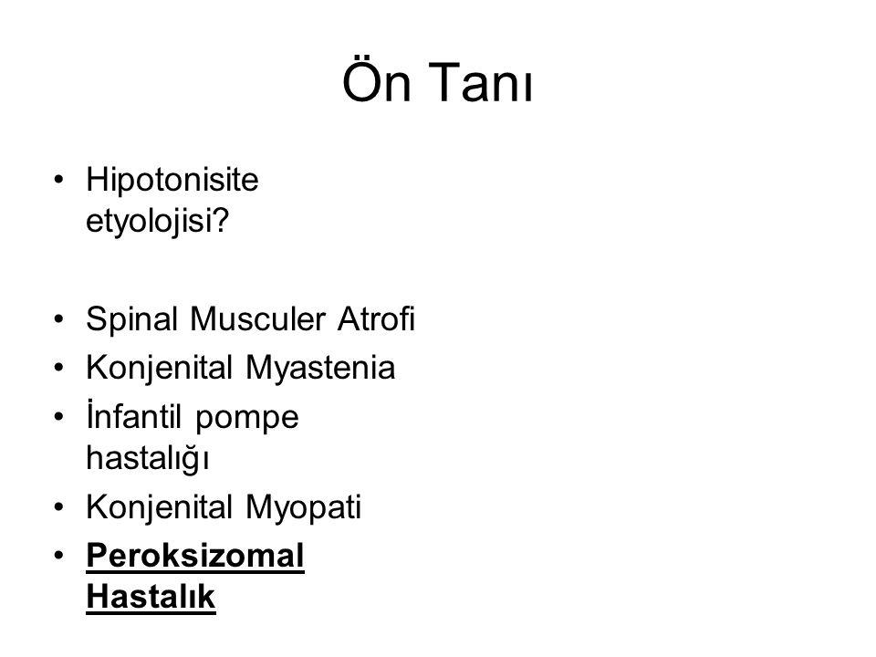 Hipotonisite etyolojisi? Spinal Musculer Atrofi Konjenital Myastenia İnfantil pompe hastalığı Konjenital Myopati Peroksizomal Hastalık