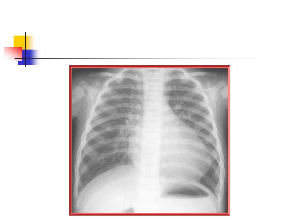 YENİDOĞANDA KARDİYAK ACİLLER TELERADYOGRAM Pulmoner vaskülariteyi artıranlar Asiyanotikler VSD,PDA,AVSD Siyanotikler Büyük arter transpo, Trunk Art Tek Vent, Hipoplastik sol kalp Tot pulm venöz dönüş anom