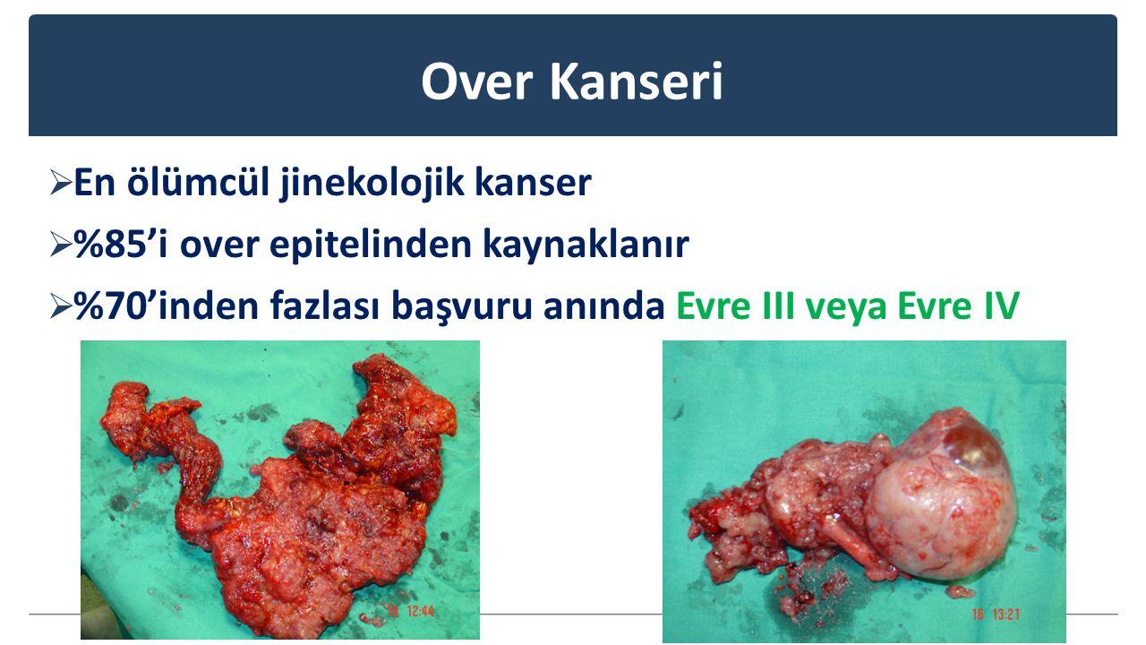 Over Kanseri  En ölümcül jinekolojik kanser  %85'i over epitelinden kaynaklanır  %70'inden fazlası başvuru anında Evre III veya Evre IV
