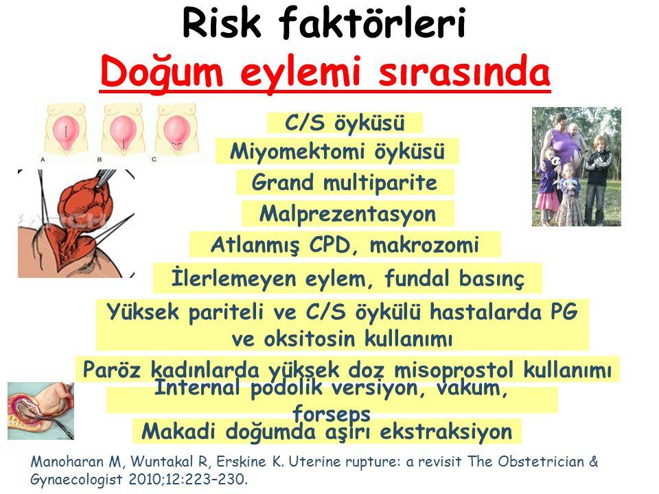 Risk faktörleri Doğum eylemi sırasında C/S öyküsü Malprezentasyon Miyomektomi öyküsü Grand multiparite Atlanmış CPD, makrozomi İlerlemeyen eylem, fund