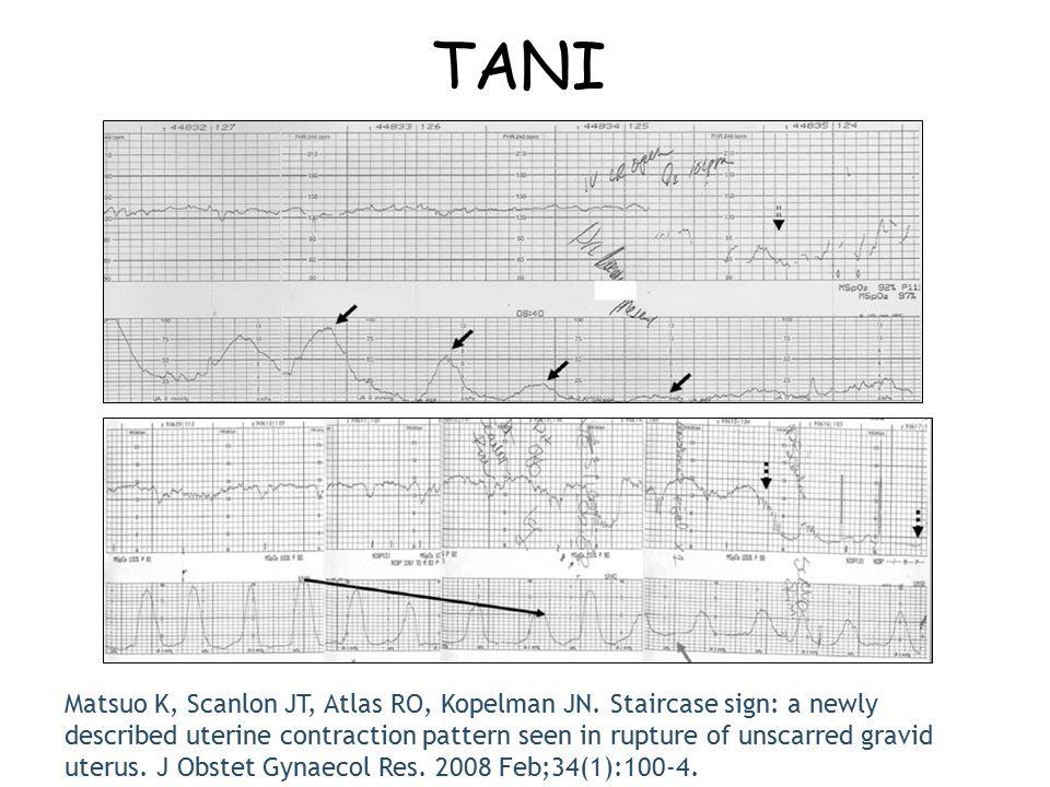 TANI Matsuo K, Scanlon JT, Atlas RO, Kopelman JN. Staircase sign: a newly described uterine contraction pattern seen in rupture of unscarred gravid ut