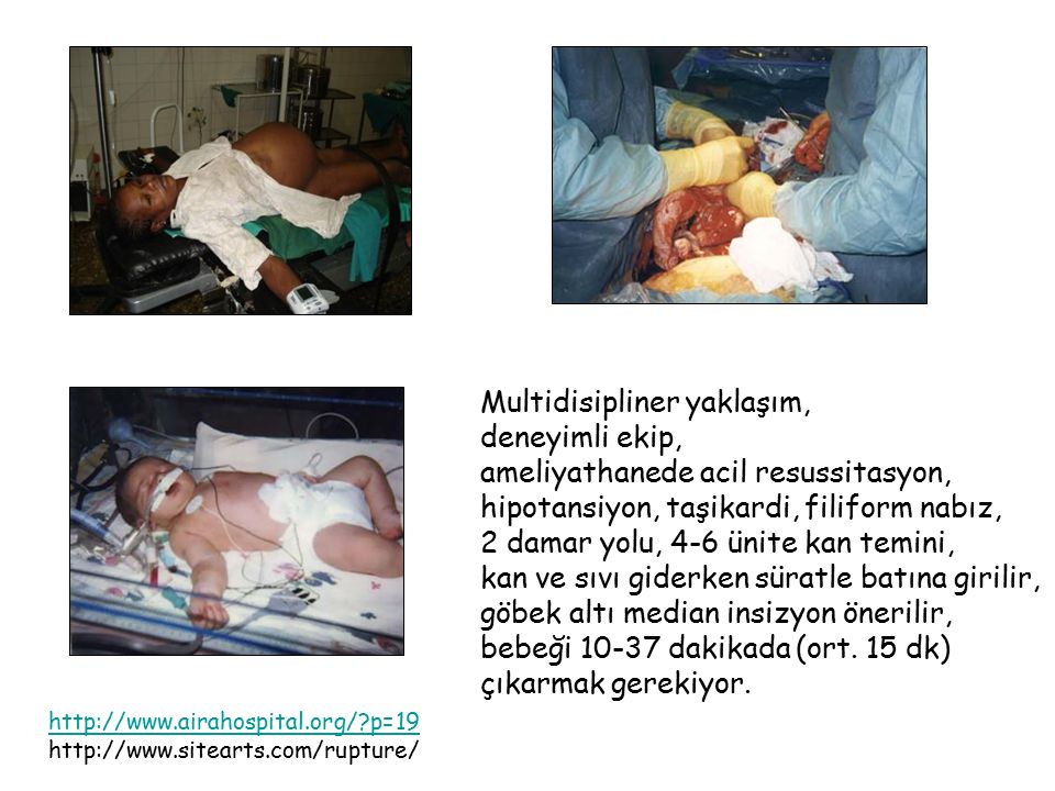 http://www.airahospital.org/?p=19 http://www.sitearts.com/rupture/ Multidisipliner yaklaşım, deneyimli ekip, ameliyathanede acil resussitasyon, hipota
