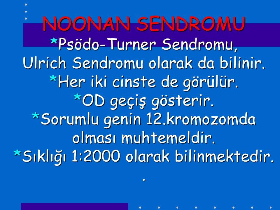 NOONAN SENDROMU *Psödo-Turner Sendromu, Ulrich Sendromu olarak da bilinir. *Her iki cinste de görülür. *OD geçiş gösterir. *Sorumlu genin 12.kromozomd