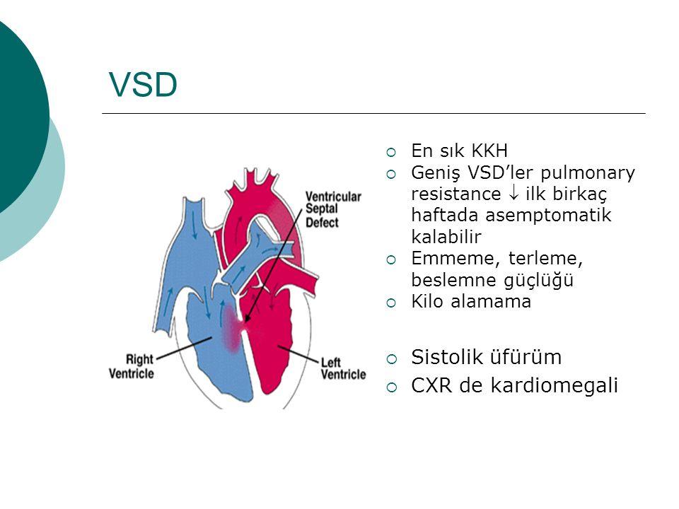 VSD  En sık KKH  Geniş VSD'ler pulmonary resistance  ilk birkaç haftada asemptomatik kalabilir  Emmeme, terleme, beslemne güçlüğü  Kilo alamama  Sistolik üfürüm  CXR de kardiomegali
