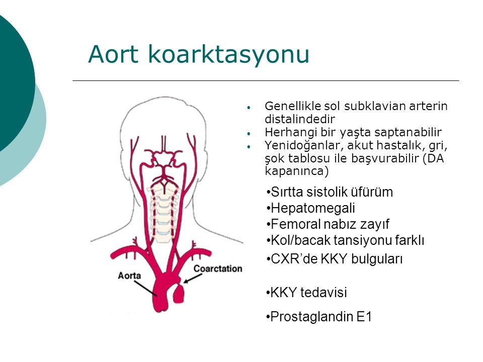 Aort koarktasyonu Genellikle sol subklavian arterin distalindedir Herhangi bir yaşta saptanabilir Yenidoğanlar, akut hastalık, gri, şok tablosu ile başvurabilir (DA kapanınca) Sırtta sistolik üfürüm Hepatomegali Femoral nabız zayıf Kol/bacak tansiyonu farklı CXR'de KKY bulguları KKY tedavisi Prostaglandin E1