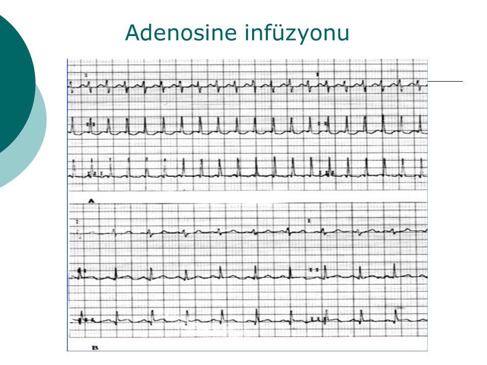 Adenosine infüzyonu