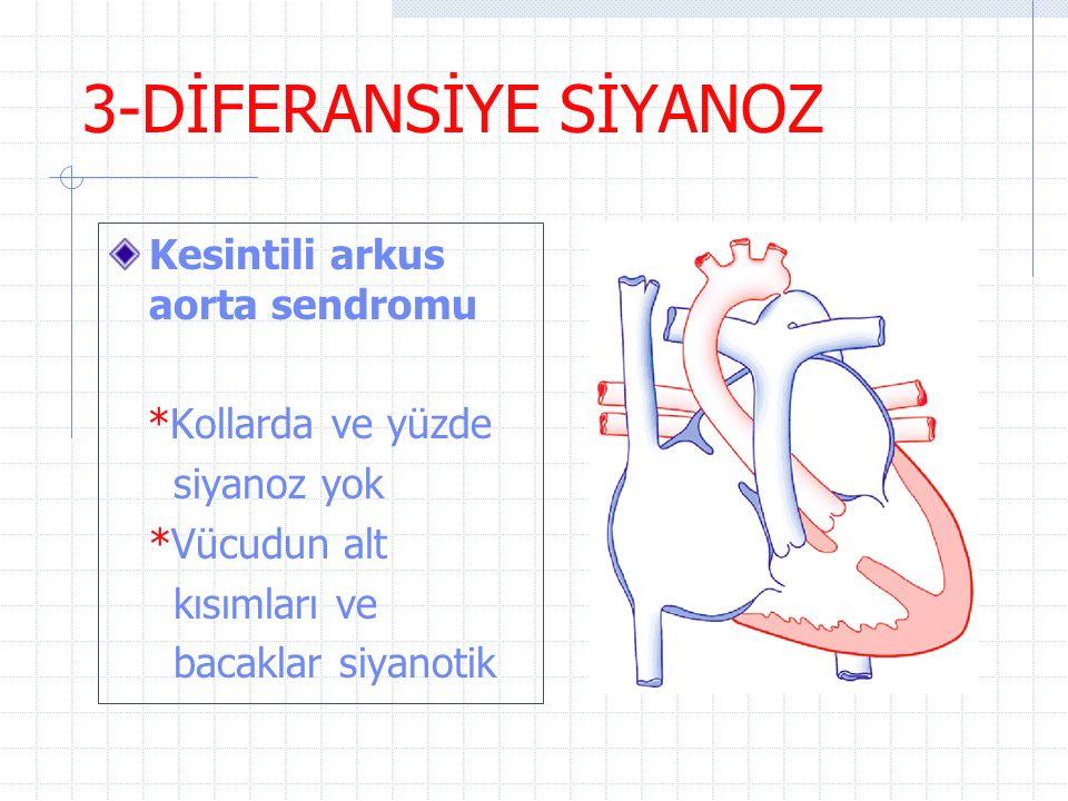 3-DİFERANSİYE SİYANOZ Kesintili arkus aorta sendromu *Kollarda ve yüzde siyanoz yok *Vücudun alt kısımları ve bacaklar siyanotik