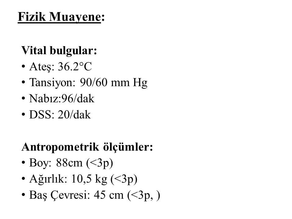 Fizik Muayene: Vital bulgular: Ateş: 36.2°C Tansiyon: 90/60 mm Hg Nabız:96/dak DSS: 20/dak Antropometrik ölçümler: Boy: 88cm (<3p) Ağırlık: 10,5 kg (<3p) Baş Çevresi: 45 cm (<3p, )
