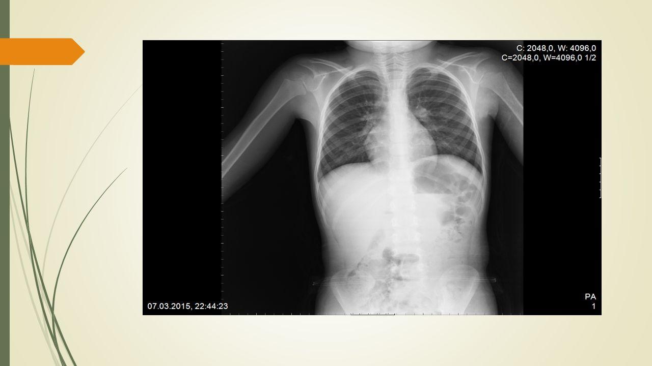 Hikaye  Hastanın oral antibiyotik tedavisine rağmen ateşi 39-40 derecelerde seyretmiş.