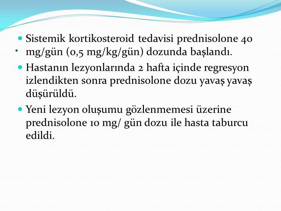 Sistemik kortikosteroid tedavisi prednisolone 40 mg/gün (0,5 mg/kg/gün) dozunda başlandı.