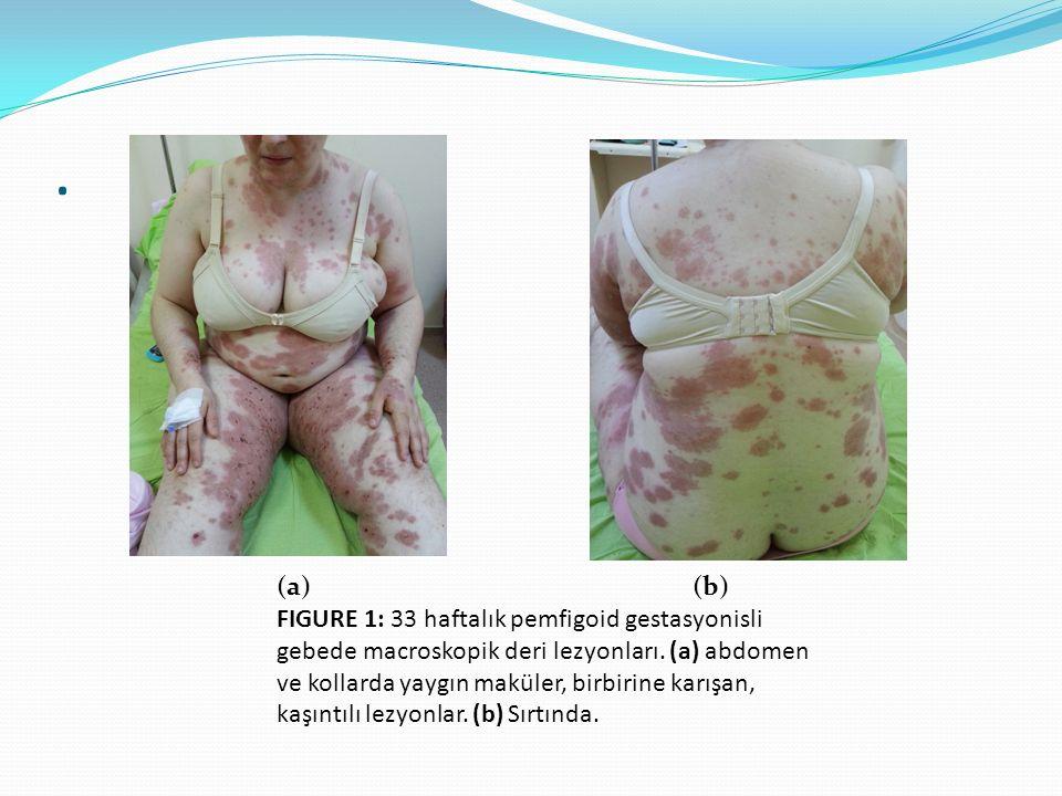 (a) (b) FIGURE 1: 33 haftalık pemfigoid gestasyonisli gebede macroskopik deri lezyonları.