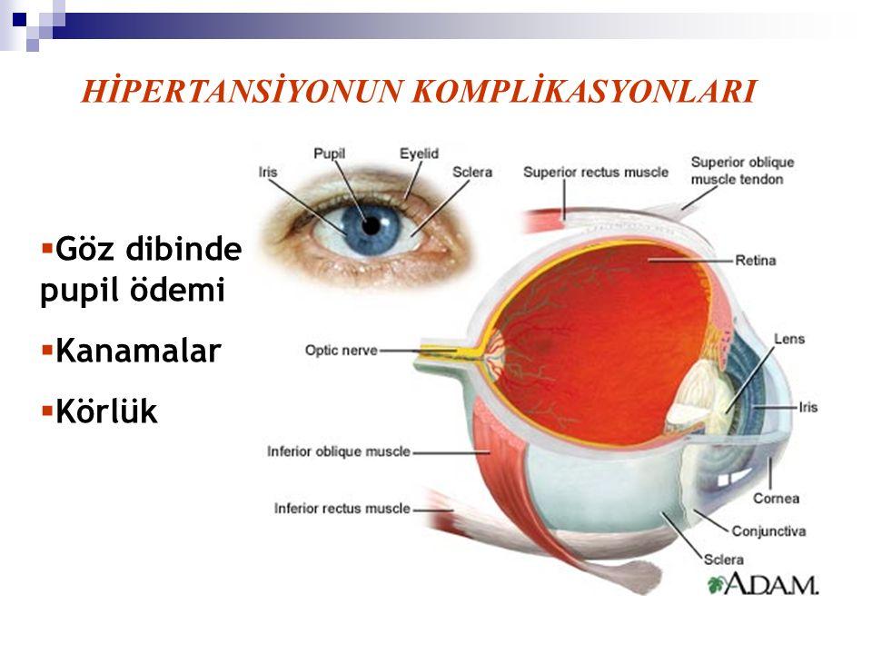 HİPERTANSİYONUN KOMPLİKASYONLARI  Göz dibinde pupil ödemi  Kanamalar  Körlük