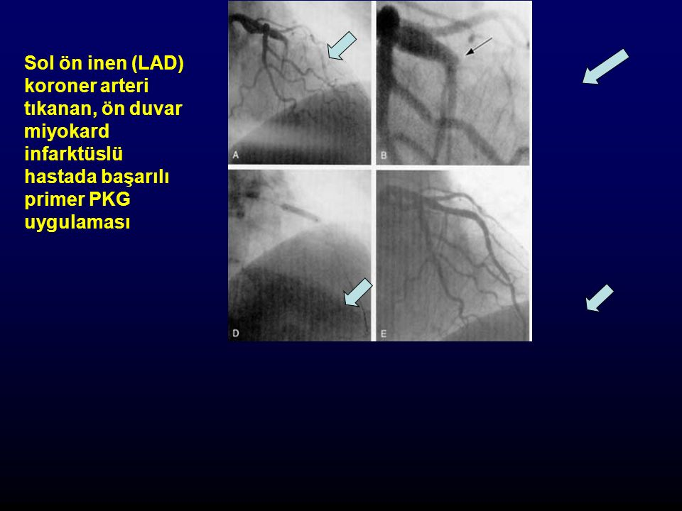 Sol ön inen (LAD) koroner arteri tıkanan, ön duvar miyokard infarktüslü hastada başarılı primer PKG uygulaması