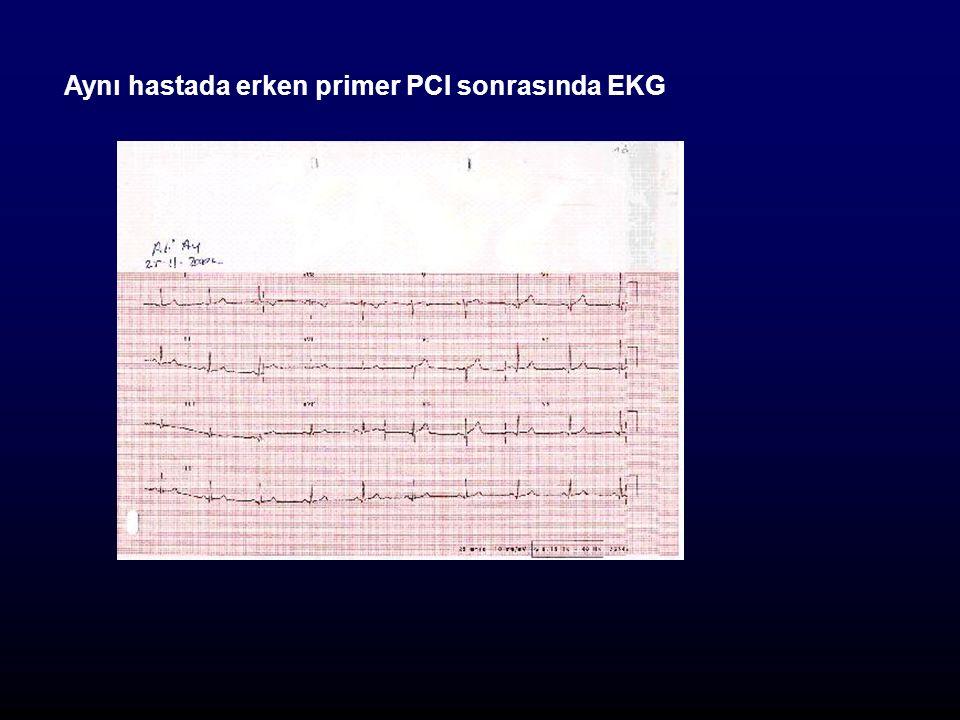 Aynı hastada erken primer PCI sonrasında EKG